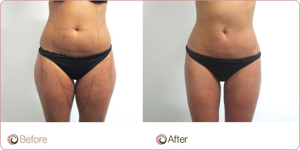 Best Coolsculpting Melbourne