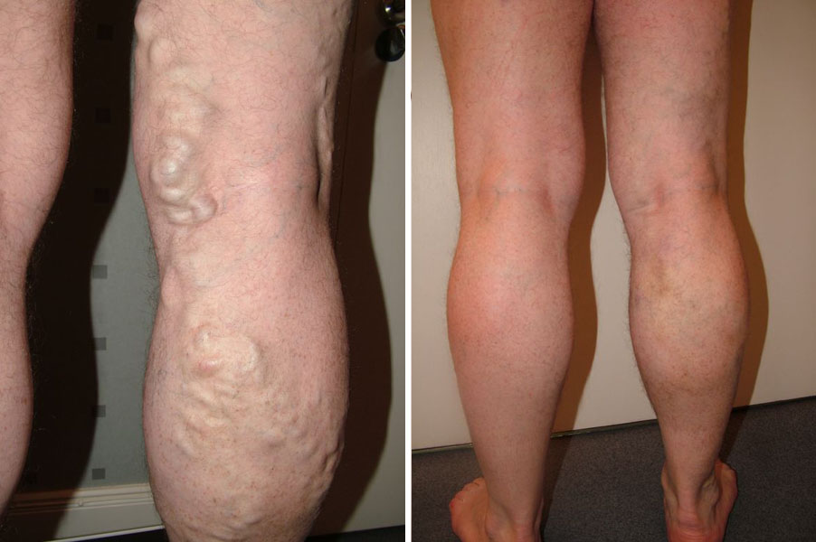 Different Varicose Vein Treatment Options